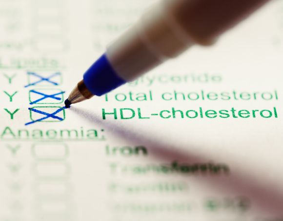 Taking a Cholesterol test & what the results mean