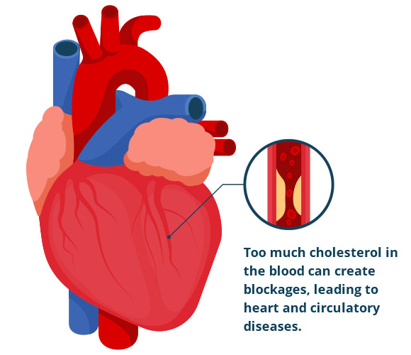 Image result for Increased cholesterol in the body may cause risk of heart attack